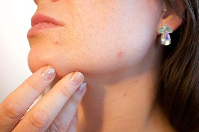 žena s akné